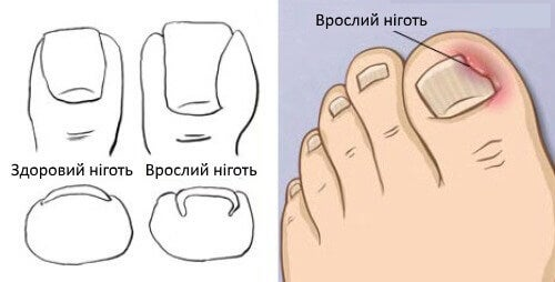 Врослий ніготь на ногах: лікування