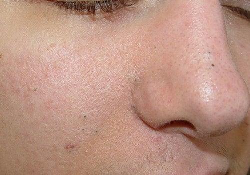 Маски від вугрів на обличчі