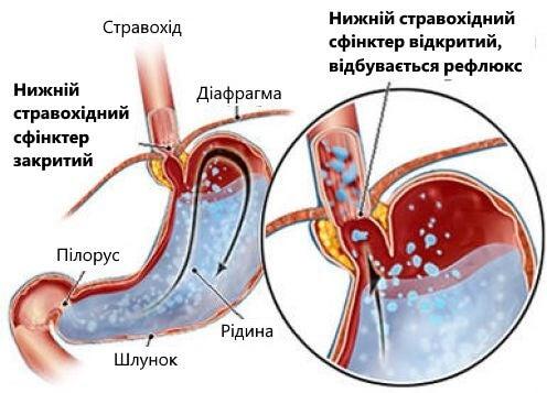 Поради для боротьби з кислотним рефлюксом