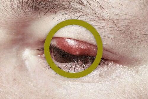Як лікувати ячмінь на оці у домашніх умовах?