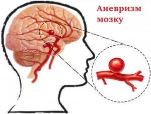 Аневризми головного мозку: що це таке і як запобігти?