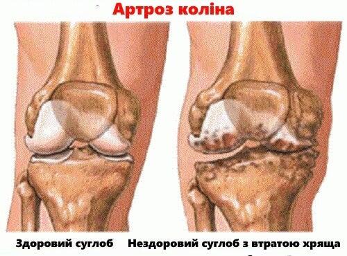 Симптоми і профілактика артриту