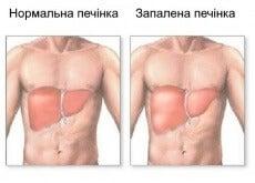 pechinka (2)