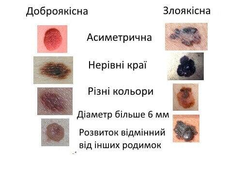 rak-shkiry3