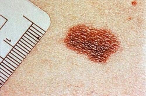 родимки на шкірі