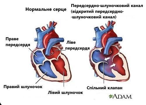 7 симптомів шумів серця, про які слід знати