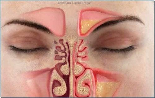 Як зменшити закладення носа за одну хвилину