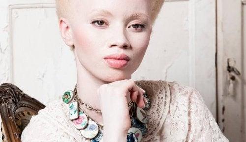 1-albinos