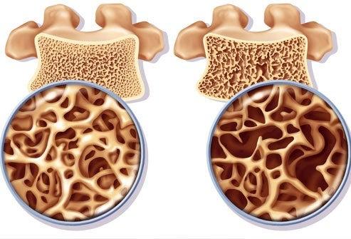 1-osteoporos