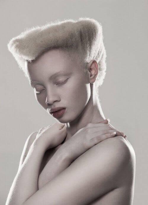2-albinos-model