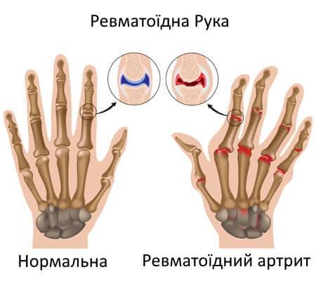 3-rheumatoid-ruka