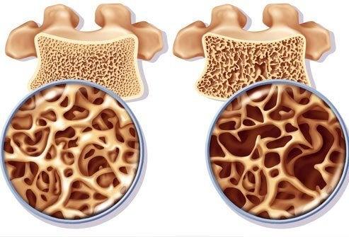 Остеопороз у жінок: профілактика і лікування