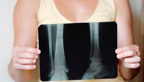 рентген показує остеопороз у жінок