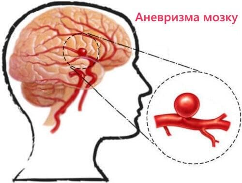 Виявлення аневризми і запобігання її появі