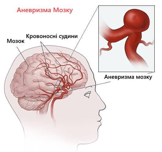 anevrysm-mozku-kopiya