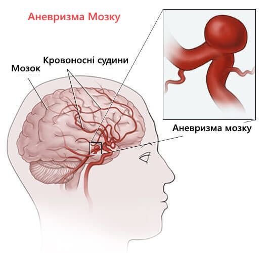 схема аневризми