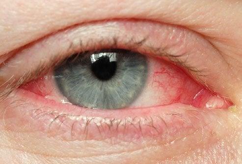 Природні способи усуненняподразнення очей
