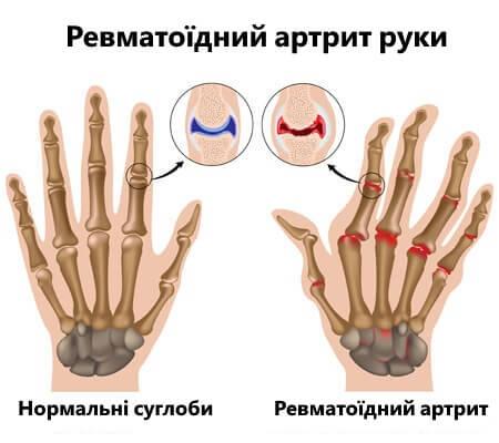 revmatyzm (2)