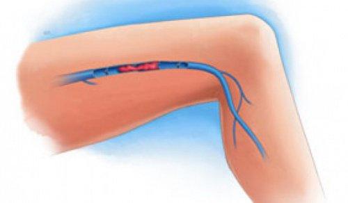 Симптоми тромбів у ногах