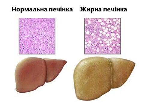 zhyrna-pechinka (1)