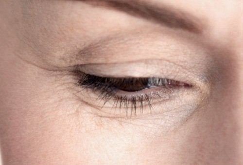 зморшки біля очей