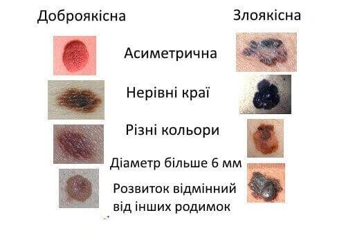 Ознаки і симптоми меланоми