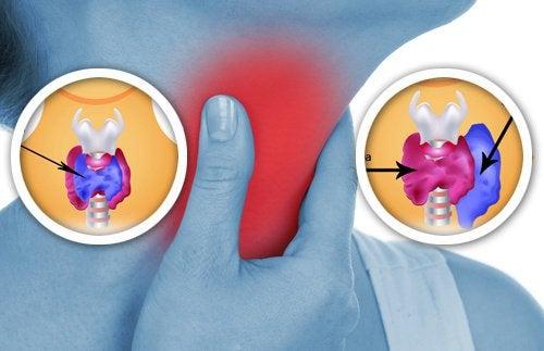 щитоподібна залоза