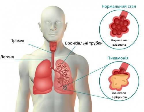 Симптоми і лікування пневмонії