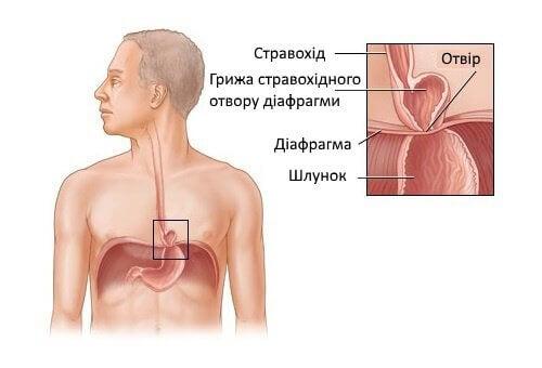 грижу стравохідного отвору діафрагми