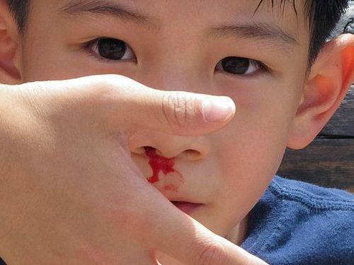 кров з носа у хлопчика