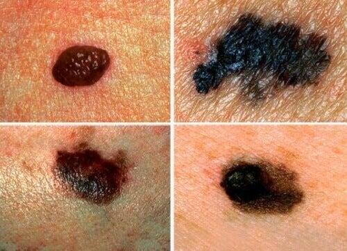 Навчіться діагностувати рак шкіри