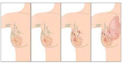 Основні причини раку молочної залози