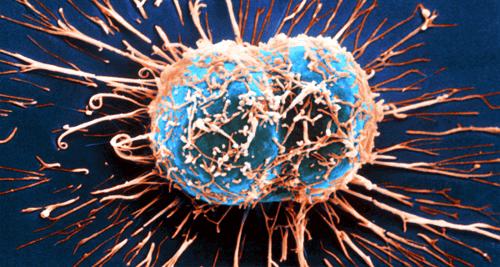 11 ознак раку, які часто ігнорують