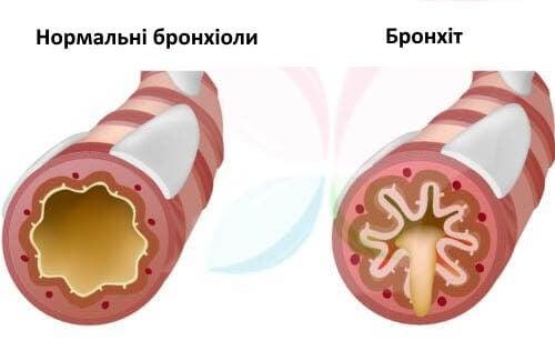 Що спричиняє кашель