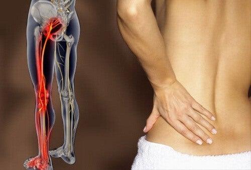 біль по ходу сідничного нерва