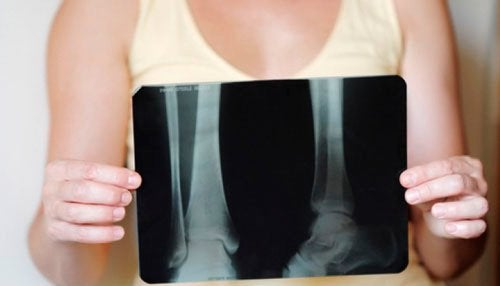 втрата кісткової маси