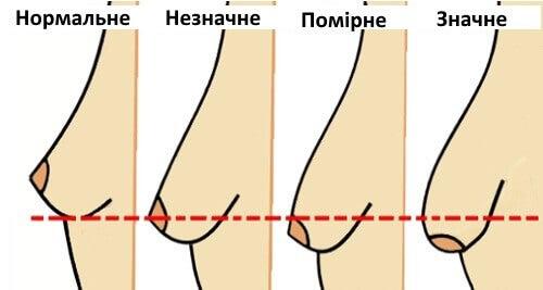 5 звичок, яківикликають провисання грудей