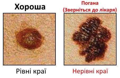 родимки як одна з ознак раку