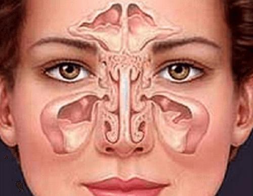 Як лікувати синусит природним чином