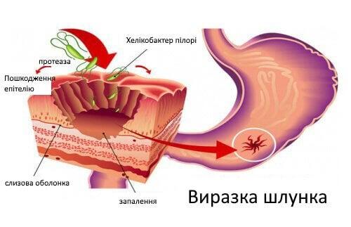 Як боротися з бактерією хелікобактер пілорі