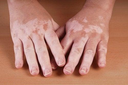 1-vitiliho-ruky