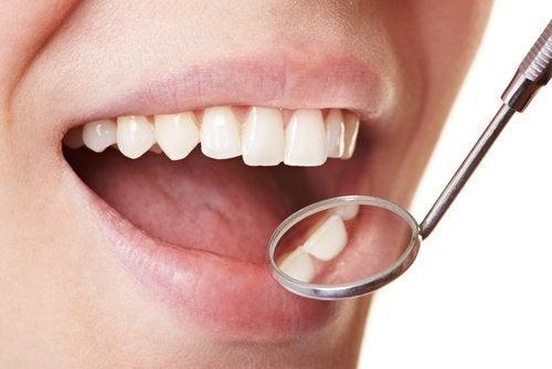 Як легко усунути зубний наліт удомашніх умовах