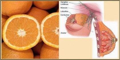 Апельсини та молочні залози