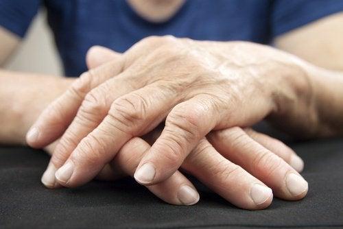 Зв'язок між болем у суглобах і кишковою бактерією