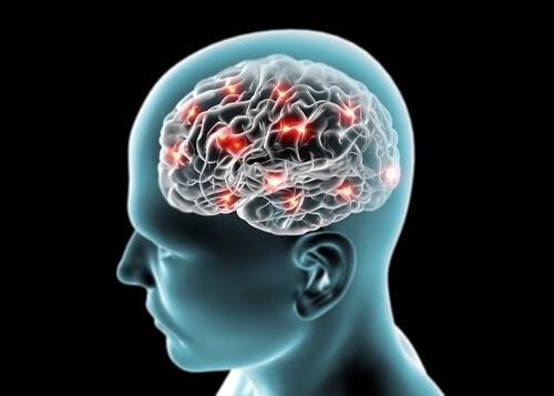 могоз у голові людини