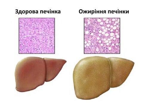 жирова хвороба печінки