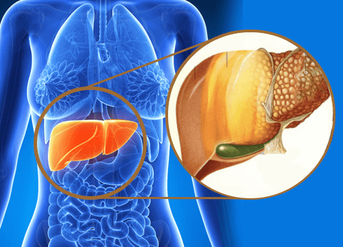 Що таке жирова хвороба печінки? Як її лікувати?