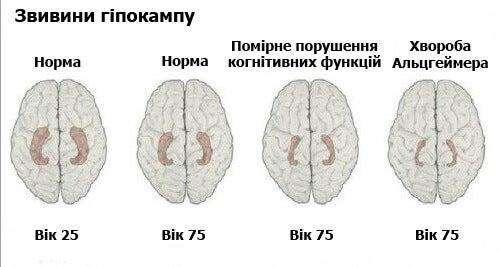 Навчіться розпізнавати ранні симптоми хвороби Альцгеймера