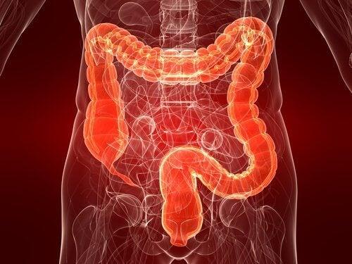Виразковий коліт: причини, симптоми та лікування