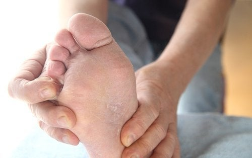 Епідермофітія стопи: профілактика і лікування